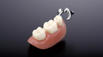 プラスチック(部分入れ歯)